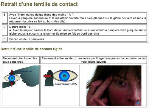 48c07f774b8e8d Non-categorisé - L Optique des Lions